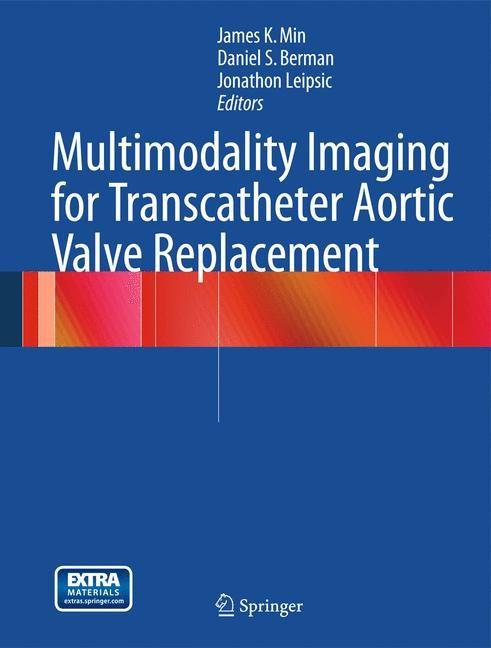 Abbildung von Min / Berman / Leipsic   Multimodality Imaging for Transcatheter Aortic Valve Replacement   2013