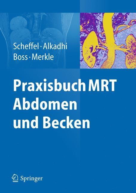 Abbildung von Scheffel / Alkadhi / Boss / Merkle | Praxisbuch MRT Abdomen und Becken | 2012