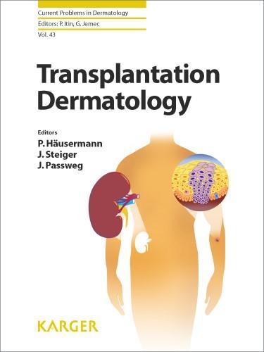 Abbildung von Häusermann / Steiger / Passweg   Transplantation Dermatology   2012