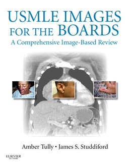 Abbildung von Tully / Studdiford | USMLE Images for the Boards | 2012 | A Comprehensive Image-Based Re...