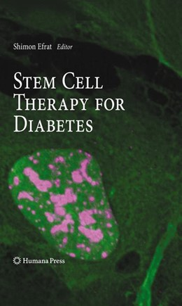 Abbildung von Efrat | Stem Cell Therapy for Diabetes | 2012