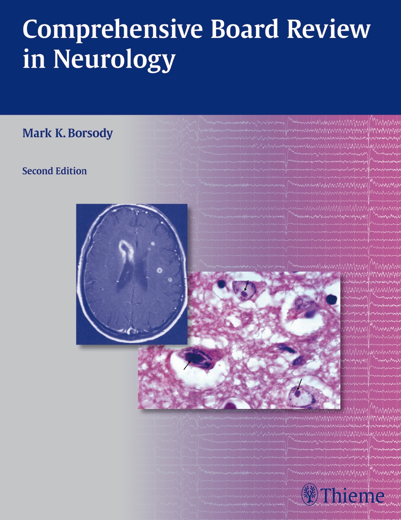 Comprehensive Board Review in Neurology | Borsody, 2012 | Buch (Cover)