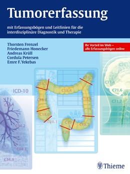 Abbildung von Frenzel / Honecker / Krüll / Petersen / Yekebas | Tumorerfassung | 2012 | mit Erfassungsbögen und Leitli...