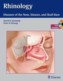 Abbildung von Kennedy / Hwang | Rhinology | 2012 | Diseases of the Nose, Sinuses,...