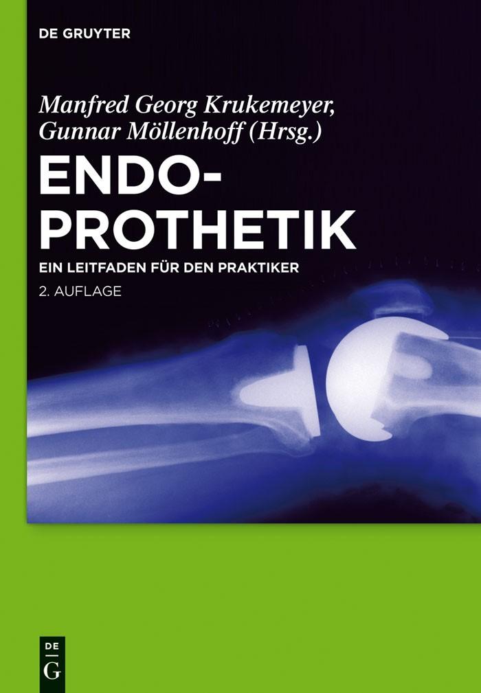 Abbildung von Krukemeyer / Möllenhoff   Endoprothetik   2. Auflage   2011