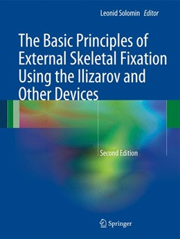 Abbildung von Solomin   The Basic Principles of External Skeletal Fixation Using the Ilizarov and Other Devices   2013