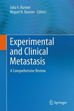 Abbildung von Burnier | Experimental and Clinical Metastasis | 2013 | A Comprehensive Review