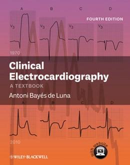 Abbildung von Bayés de Luna | Clinical Electrocardiography | 2012