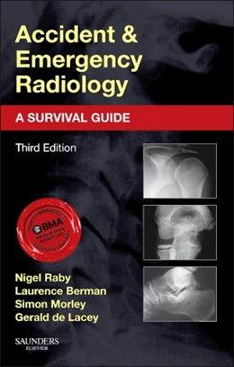 Abbildung von Raby / de Lacey / Berman | Accident and Emergency Radiology: A Survival Guide | 2014