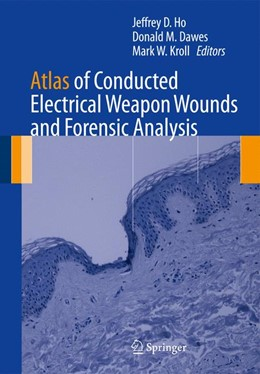 Abbildung von Ho / Dawes / Kroll   Atlas of Conducted Electrical Weapon Wounds and Forensic Analysis   2012