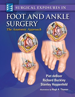 Abbildung von deBoer / Buckley / Hoppenfeld | Surgical Exposures in Foot & Ankle Surgery | 2012 | The Anatomic Approach