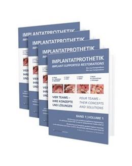 Abbildung von Ackermann / Beuer / Happe | Implantatprothetik. Blu-Ray-Kompendium | 2012 | Vier Teams – Ihre Konzepte und...