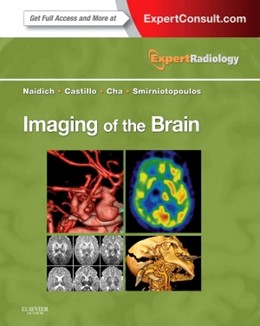 Abbildung von Naidich / Castillo / Cha   Imaging of the Brain   2012   Expert Radiology Series