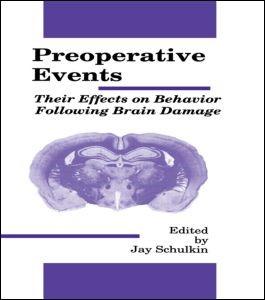 Abbildung von Schulkin | Preoperative Events | 1989