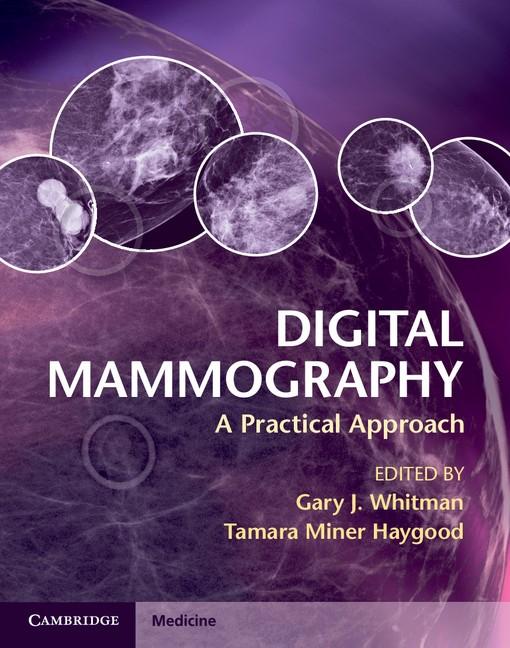 Abbildung von Whitman / Haygood | Digital Mammography | 2012