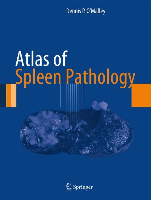 Atlas of Spleen Pathology | O'Malley, 2012 | Buch (Cover)