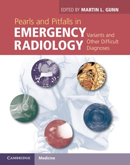Abbildung von Gunn | Pearls and Pitfalls in Emergency Radiology | 2013 | Variants and Other Difficult D...