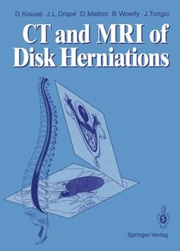 Abbildung von Krause / Drape / Maitrot | CT and MRI of Disk Herniations | 2012