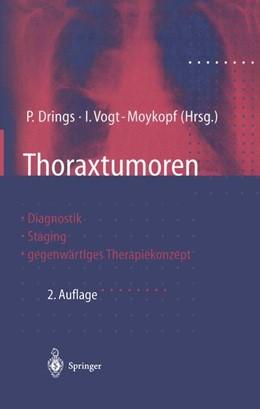 Abbildung von Drings / Vogt-Moykopf | Thoraxtumoren | 2011 | Diagnostik — Staging — gegenwä...