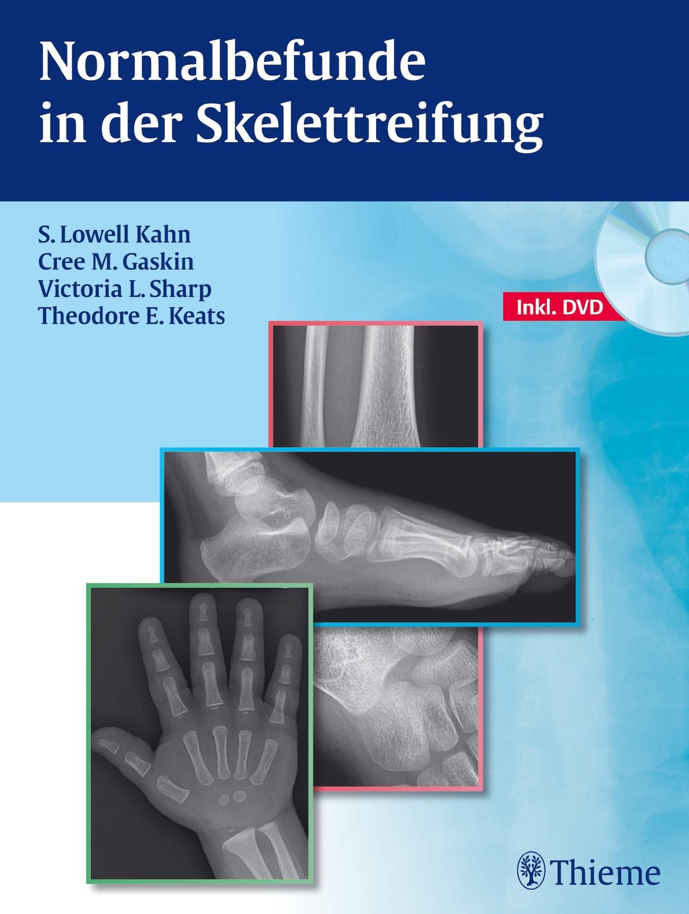 Normalbefunde in der Skelettreifung | Kahn / Gaskin / Sharp, 2012 | Buch (Cover)