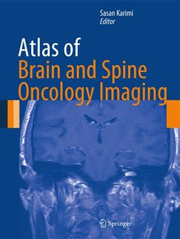 Abbildung von Karimi | Atlas of Brain and Spine Oncology Imaging | 2012