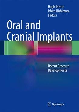 Abbildung von Devlin / Nishimura | Oral and Cranial Implants | 1. Auflage | 2013 | beck-shop.de
