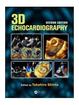 Abbildung von 3D Echocardiography   2. Auflage   2013   beck-shop.de