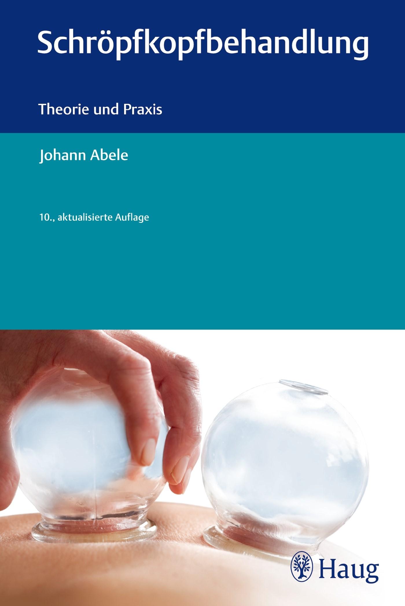 Schröpfkopfbehandlung | Abele, 2013 | Buch (Cover)