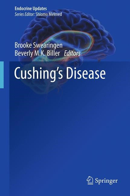 Abbildung von Swearingen / Biller | Cushing's Disease | 2013