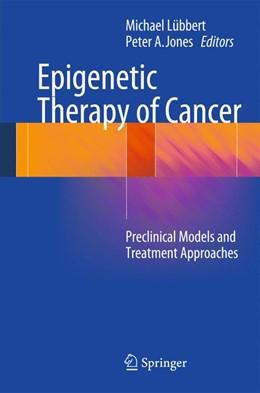 Abbildung von Lübbert / Jones   Epigenetic Therapy of Cancer   2014   Preclinical Models and Treatme...