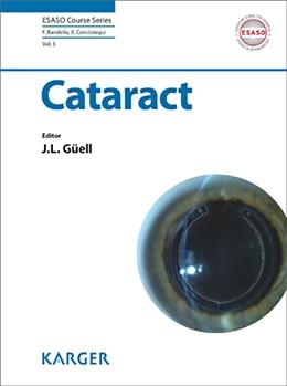 Abbildung von Güell | Cataract | 2013 | 3