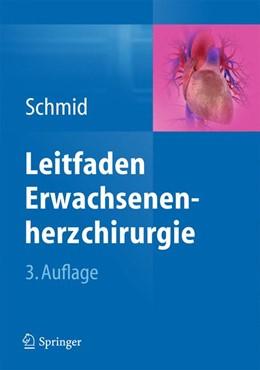 Abbildung von Schmid | Leitfaden Erwachsenenherzchirurgie | 2013