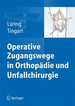 Abbildung von Lüring / Tingart | Operative Zugangswege in Orthopädie und Unfallchirurgie | 1. Auflage | 2015 | beck-shop.de