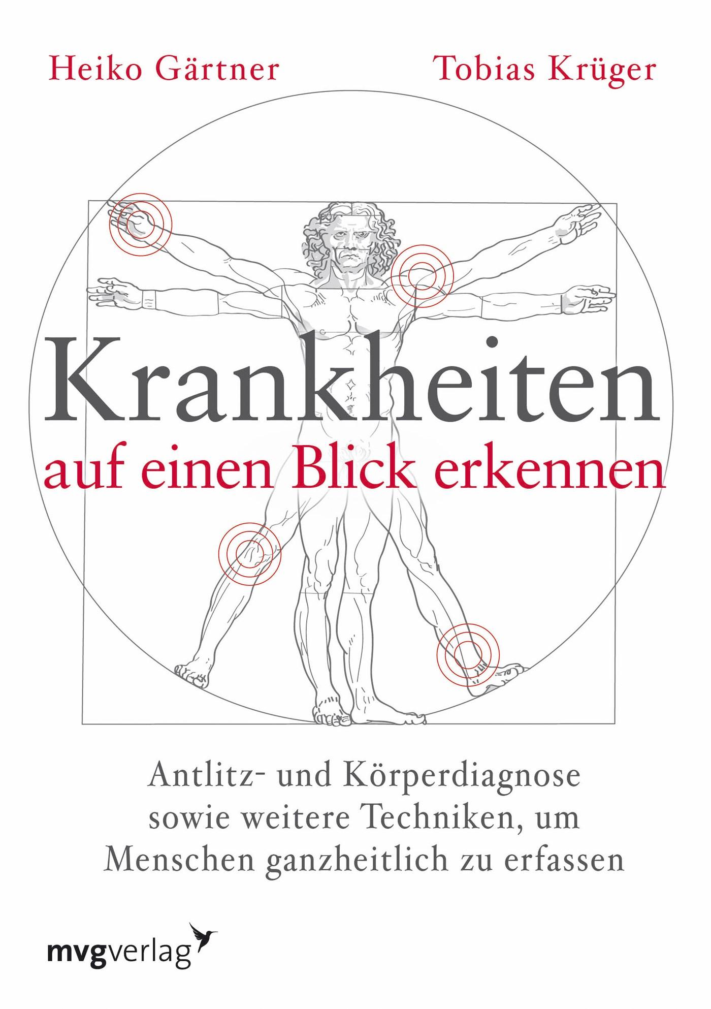 Abbildung von Gärtner / Krüger | Krankheiten auf einen Blick erkennen | 2013