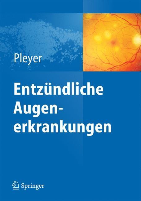 Abbildung von Pleyer | Entzündliche Augenerkrankungen | 2014