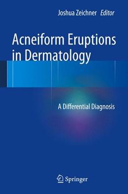 Abbildung von Zeichner | Acneiform Eruptions in Dermatology | 2013 | A Differential Diagnosis