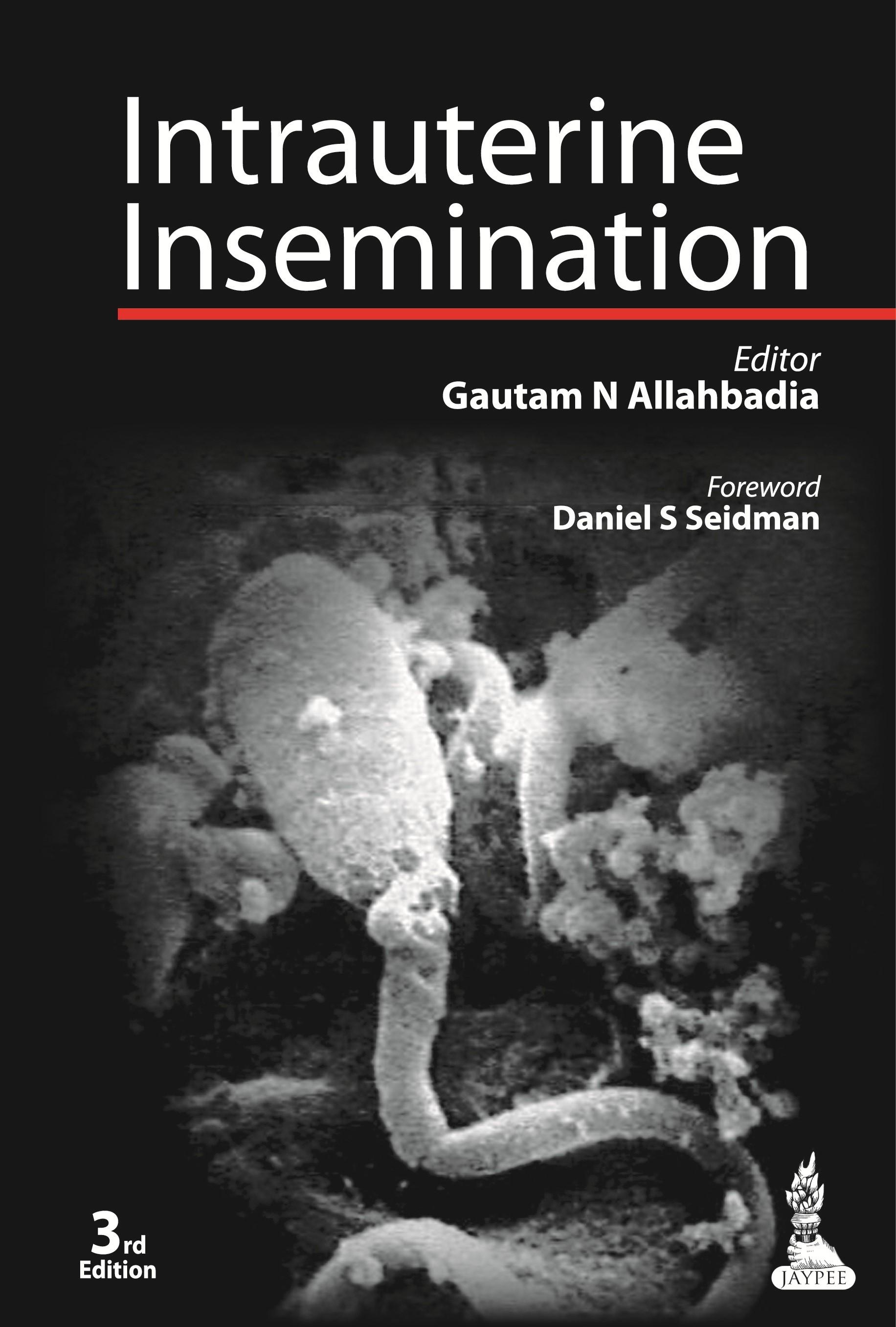 Abbildung von Allahbadia / Merchant | Intrauterine Insemination | 2013