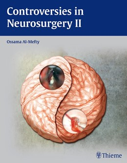 Abbildung von Al-Mefty | Controversies in Neurosurgery II | 1. Auflage | 2013 | beck-shop.de
