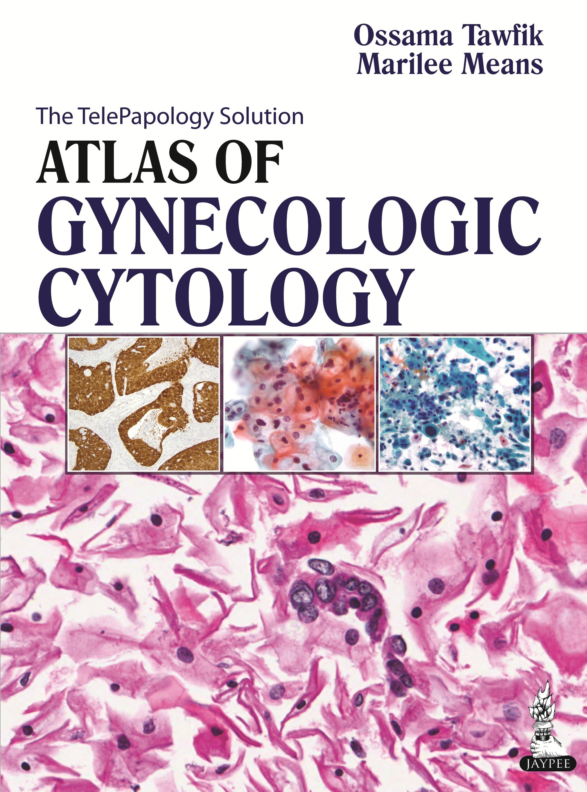 Abbildung von Tawfik / Means | Atlas of Gynecologic Cytology | 2013