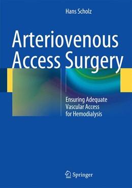 Abbildung von Scholz | Arteriovenous Access Surgery | 2014 | Ensuring Adequate Vascular Acc...