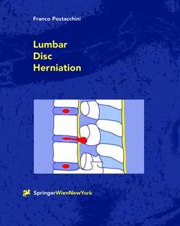 Abbildung von Postacchini | Lumbar Disc Herniation | 2012