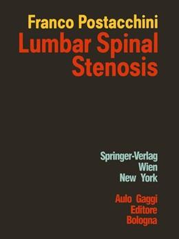 Abbildung von Postacchini   Lumbar Spinal Stenosis   1. Auflage   2012   beck-shop.de