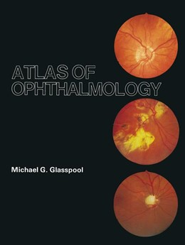 Abbildung von Glasspool | Atlas of Ophthalmology | 2012