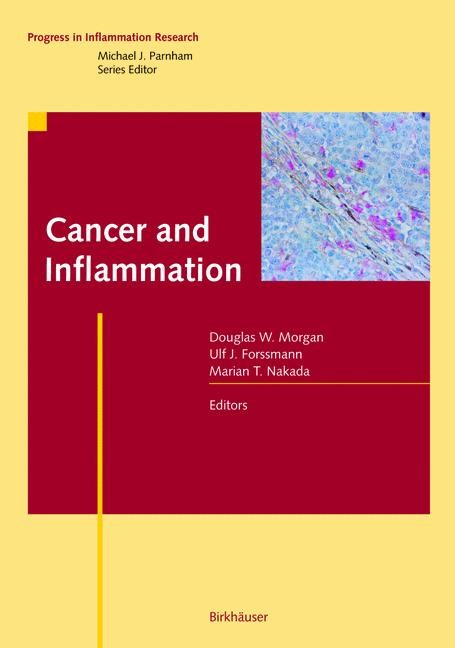 Cancer and Inflammation | Morgan / Forssman / Nakada, 2012 | Buch (Cover)