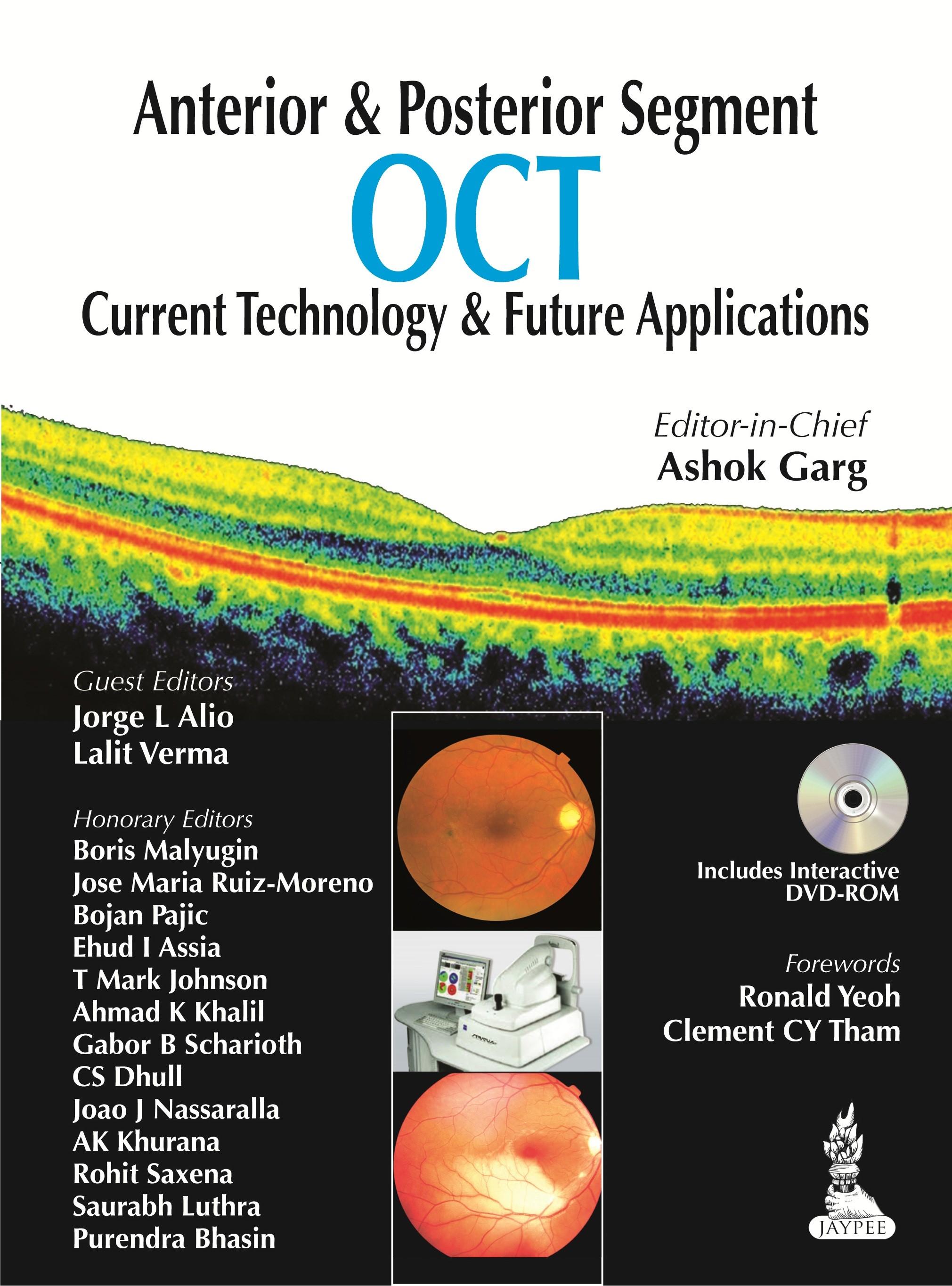 Abbildung von Garg | Anterior & Posterior Segment OCT: Current Technology & Future Applications | 2014