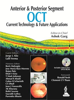 Abbildung von Garg | Anterior & Posterior Segment OCT: Current Technology & Future Applications | 2014