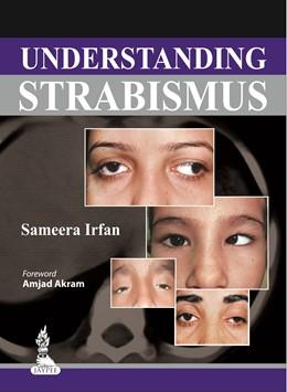 Abbildung von Irfan | Understanding Strabismus | 2013