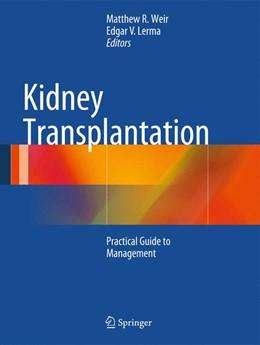 Abbildung von Weir / Lerma | Kidney Transplantation | 1. Auflage | 2014 | beck-shop.de
