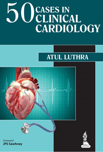 Abbildung von Luthra | 50 Cases in Clinical Cardiology | Vol. 3 | 2014
