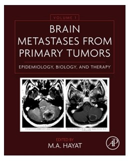 Abbildung von Hayat | Brain Metastases from Primary Tumors Volume 1 | 1. Auflage | 2014 | beck-shop.de